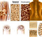 20 октомври е Световен ден за борба с остеопорозата