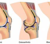 12 октомври: Световен ден за борба с артрита