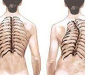 Хранене при сколиоза (странично изкривяване на гръбначния стълб)